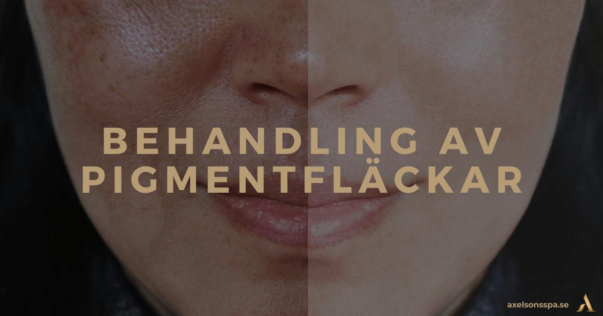 Pigmentfläckar och hyperpigmentering Axelsons SPA behandling av pigmentfläckar